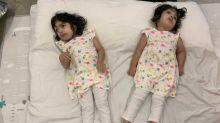 A volta para casa de gêmeas siamesas após mais de 50h de cirurgias para separação