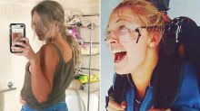 Photo reveals woman's secret health struggles after horror skydiving accident