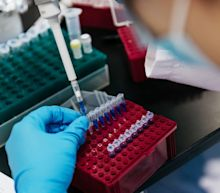 Autism blood discovery promises earlier tests and treatment