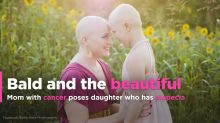 'Bald Is Beautiful': Mom with breast cancer poses with daughter who has alopecia