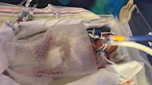 Premature baby born three months early was saved by bubble wrap