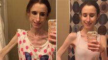 Jovem cria canal para compartilhar sua luta contra a anorexia