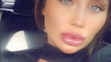 Lauren Goodger urged to stop having cosmetic work after posting 'unrecognisable' selfie