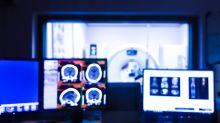 Como pesquisa brasileira de imagens de tomografia computadorizada pode ajudar no diagnóstico da Covid-19