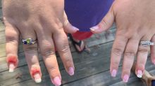 What The Health?! Woman develops nail fungus after trendy 'dip powder' manicure