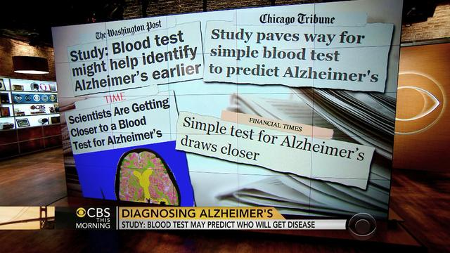 Alzheimer's blood test may predict who gets disease