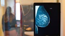 Mammographie nützt älteren Frauen kaum