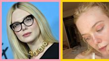 Elle Fanning just owned her facial eczema by turning it into a beauty look