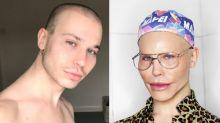 Após chocar o mundo com plásticas, maquiador revela segredo por trás delas