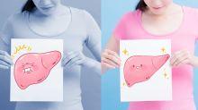 Gordura no fígado:  saiba como evitar a doença que atinge 30% da população brasileira
