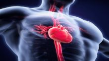 Here's Why You Should Add Cardiovascular Systems (CSII) Stock