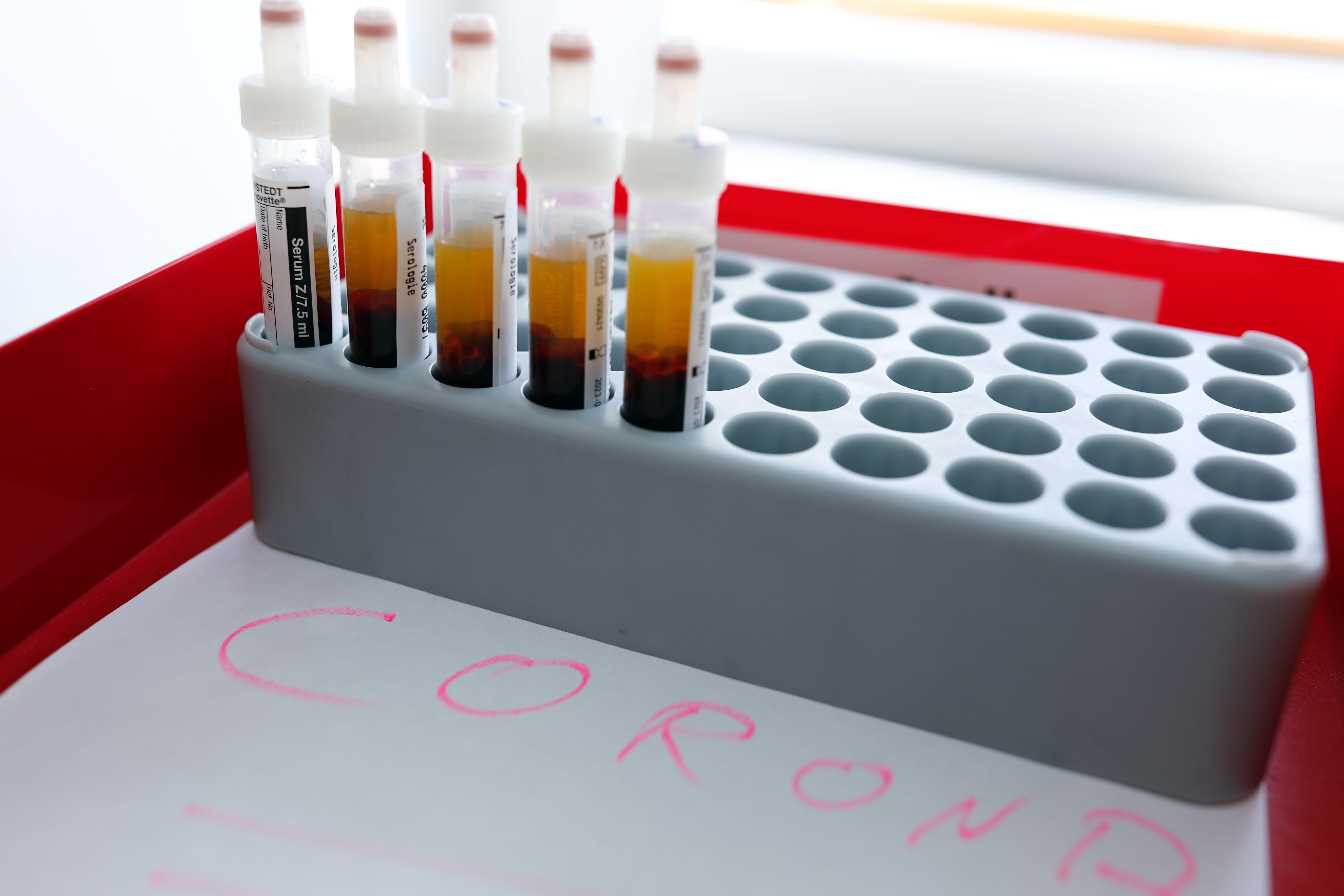 Medikamente Gegen Coronavirus
