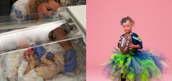 Girl's skin grows 10 times faster than normal