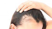 Alopecia, otro efecto secundario del coronavirus