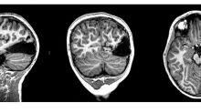 Le extirpan a un niño una sexta parte de su cerebro y se recupera de forma asombrosa