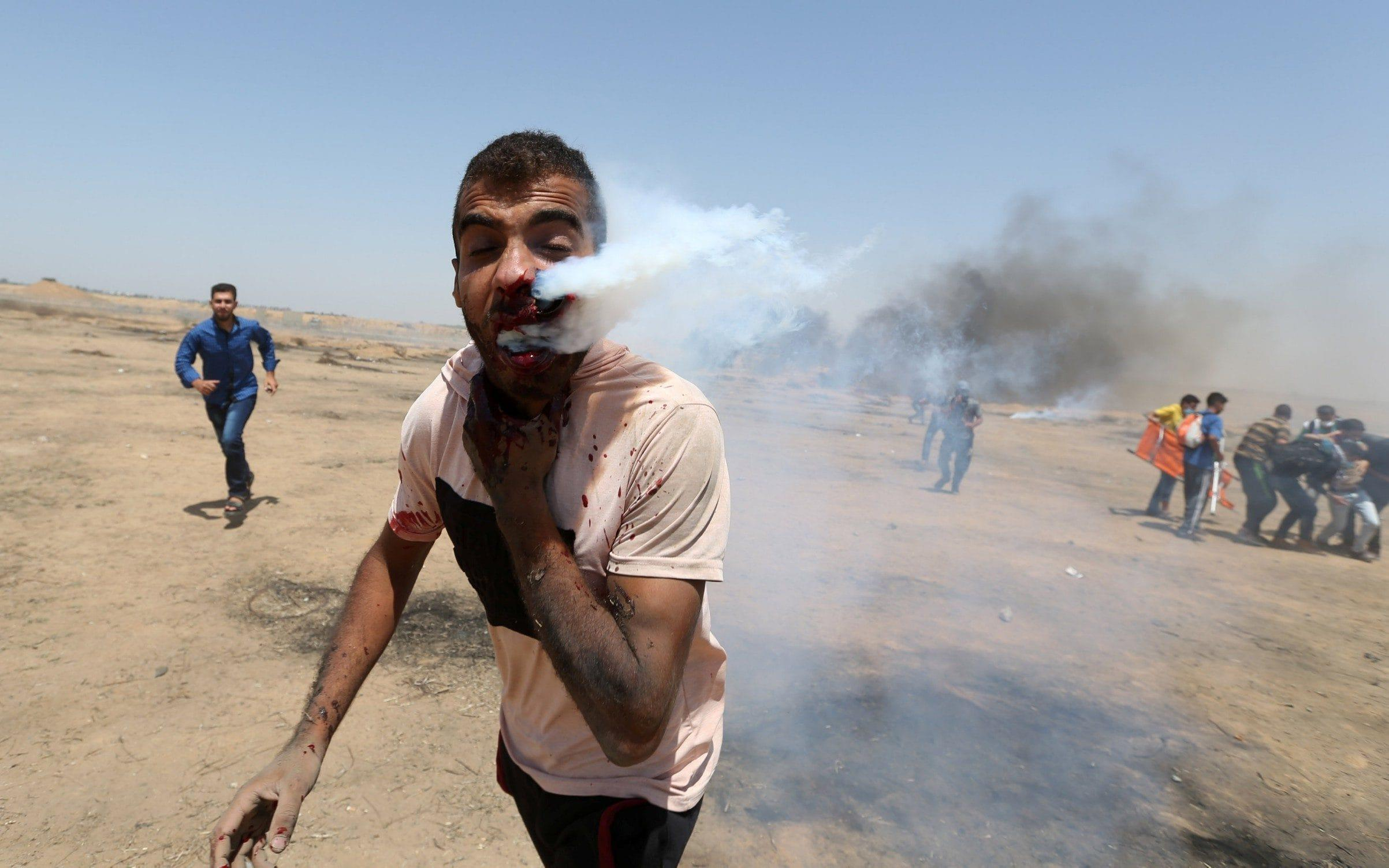 Palestinian protester hit in face by tear gas canister fired by Israeli soldier in Gaza protests