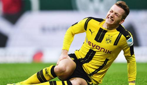 Bundesliga: BVB: Reus-Einsatz gegen Bayern unwahrscheinlich - Schmelzer kehrt zurück