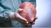 Quiero ser donante de riñón en vivo: ¿qué tengo que saber?