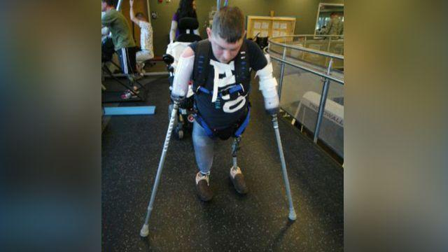 Wounded vet prepares for experimental double arm transplant
