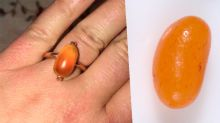 Woman's 'jelly bean' engagement ring roasted online