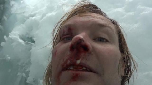 U.S. climber survives 70-foot fall in Nepal