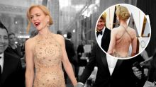 Nicole Kidman Had a Wardrobe Malfunction Right Before the Oscars