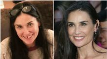 Demi Moore says stress caused her teeth to fall out: Is that possible?