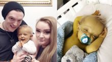 Toddler with rare genetic disorder that turns his skin yellow trolled for looking like a 'Minion'