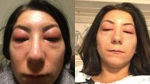 Canadian woman warns about danger of eyelash extensions after severe reaction