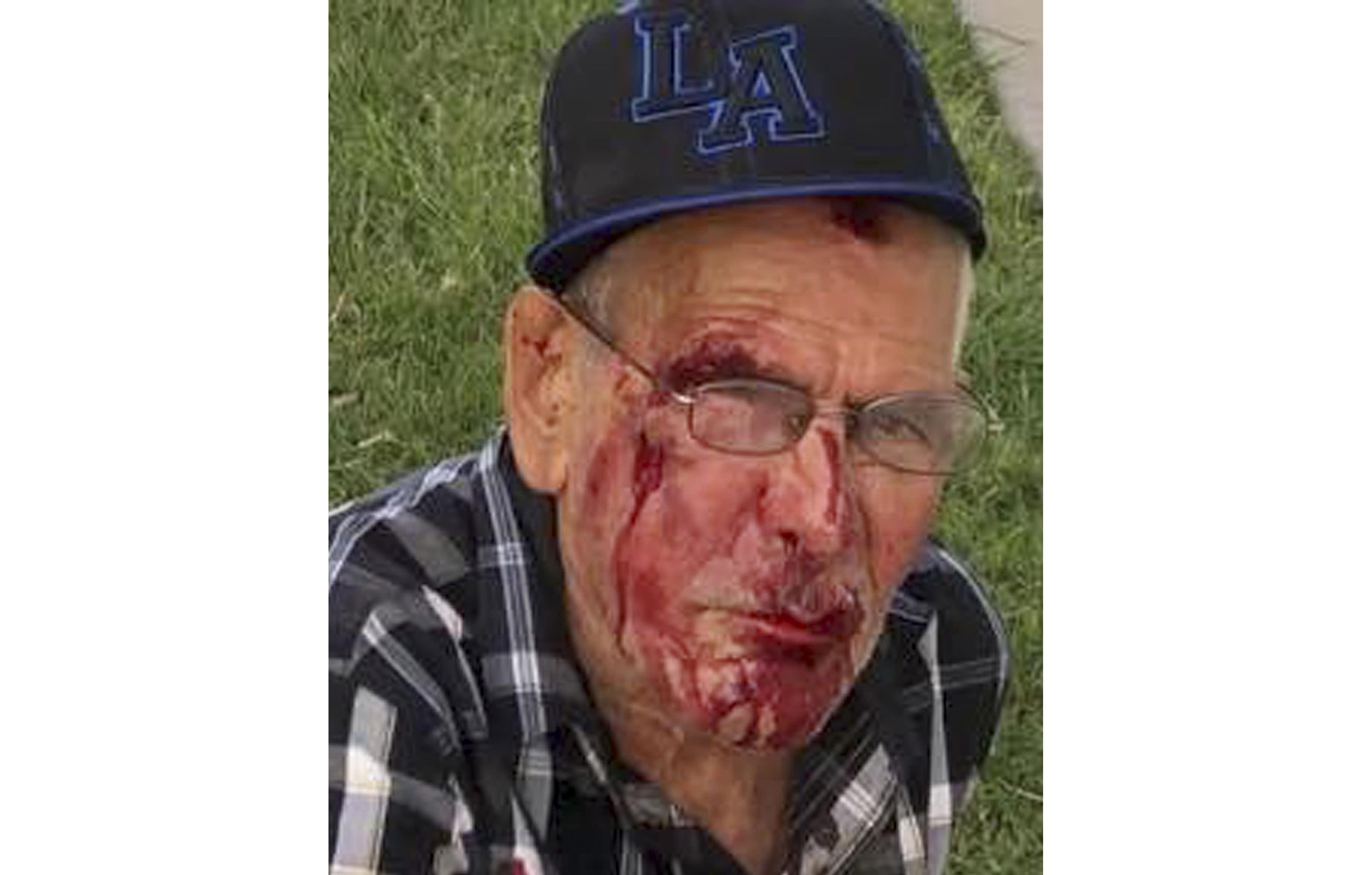 The Latest: Elderly man beaten bloody thanks key witness