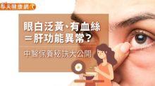 眼白泛黃、有血絲=肝功能異常?中醫保養秘訣大公開