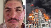 Worker injured in plant fire files lawsuit