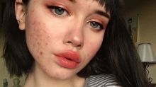 'Acne doesn't make you ugly,' blogger says in empowering post