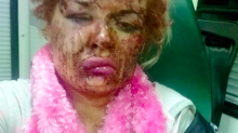 Drunken boyfriend left woman with shocking injuries after attacking her with broom handle