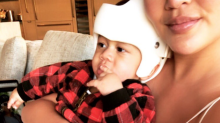 Chrissy Teigen reveals her son will have to wear a corrective helmet