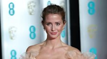 Millie Mackintosh says her baby daughter has been diagnosed with hip dysplasia