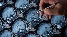 Epilepsia: de las convulsiones a la ausencia, la risa o el orgasmo