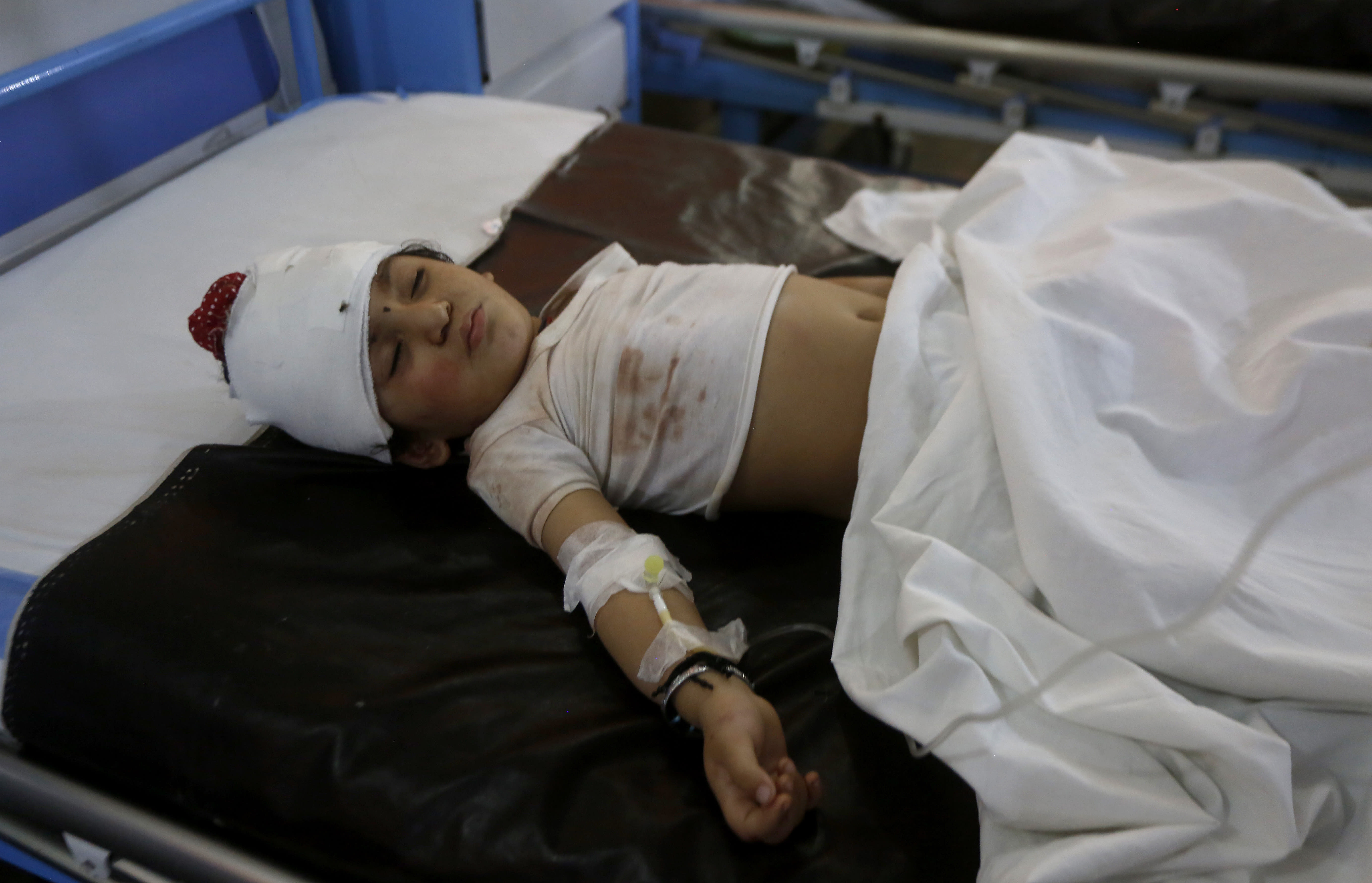 A child, who was injured in bus and train accident, lies on bed after receiving initial treatment at a hospital in Sheikhupura near Lahore, Pakistan, Friday, July 3, 2020. A passenger train crashed into a bus carrying Sikh pilgrims at an unmanned railway crossing in eastern Pakistan, police and rescue officials said. (AP Photo/K.M. Chaudary)