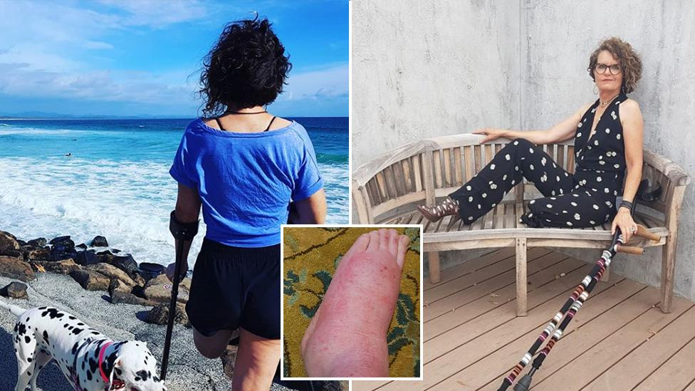 'I tried to tear it off with my hands': Woman's twisted ankle leads to agonising injury