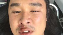 Actor Julian Hee hurt in alleged road rage incident