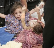 Conjoined Twin Girls Successfully Separated