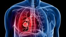 Role of real-world evidence in Lung Cancer treatment: The devil is in the details