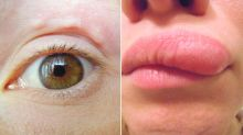 Woman's disturbing discovery after noticing lump on face