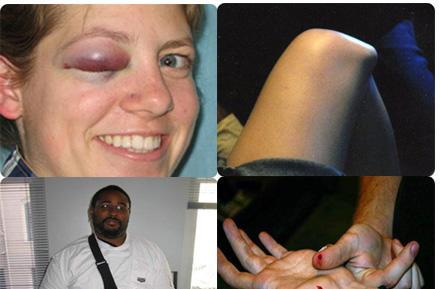 Wii-related injury roundup
