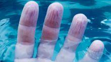 4 motivos médicos por los que los dedos se arrugan