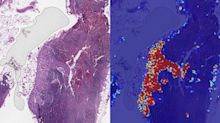 Google AI can spot advanced breast cancer more effectively than humans