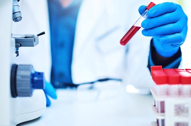 A new blood test could indicate multiple conditions with one sample