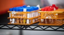 First glimpse of Canada's true COVID-19 infection rate expected mid-July