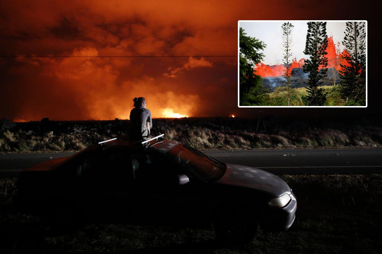 Man's leg 'shattered' after being hit by lava from Hawaii volcano