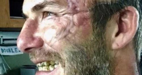 Foot - WTF - OMG, David Beckham est balafré